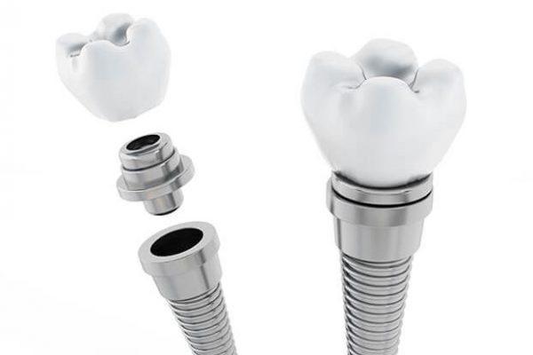 permanent Zahnimplantaten