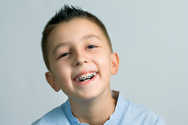 zahnregulierung von kindern